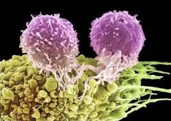 БОРЕШЬСЯ ПРОТИВ СИСТЕМЫ? - раковая клетка тоже.